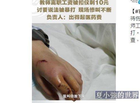柳州一名女鋼琴教師討薪被打斷手指 ,警方通報(視頻)